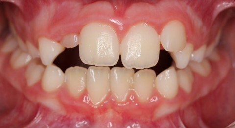 Malos hábitos infantiles orales. 22