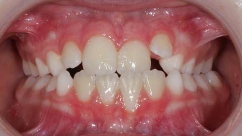 Malos hábitos infantiles orales. 21