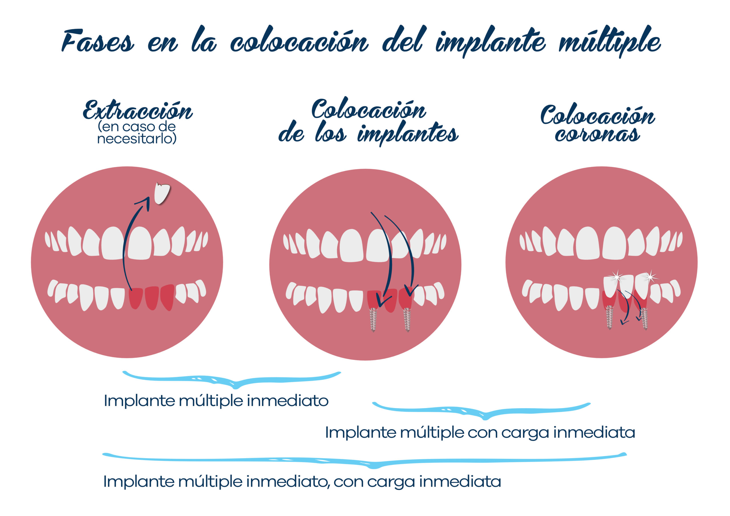 Implantología 3