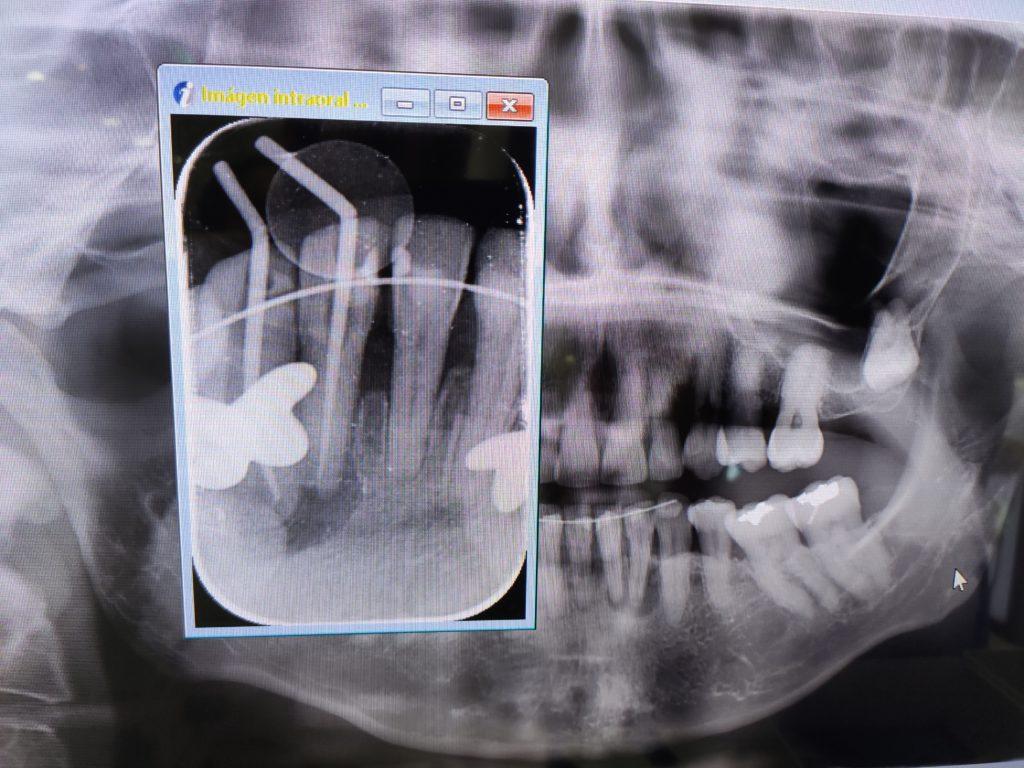 Todo lo que necesitas saber sobre Endodoncias 6