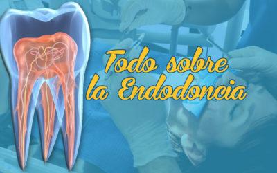 Todo lo que necesitas saber sobre Endodoncias