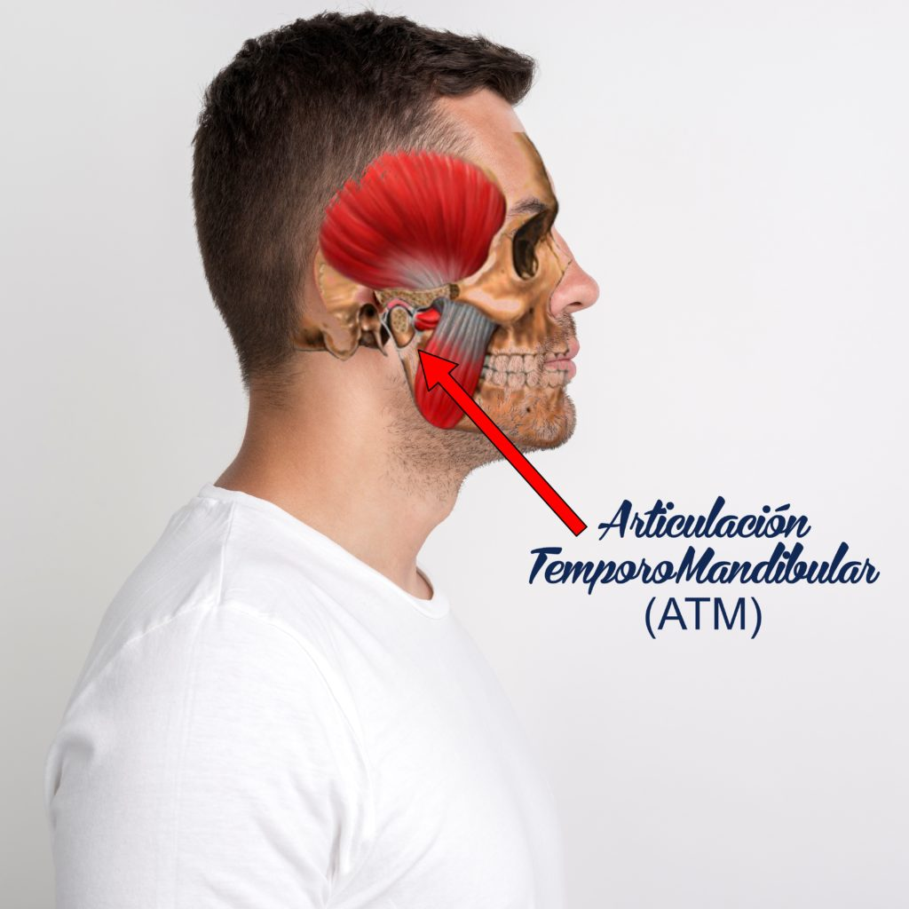Articulación temporomandibular,  problemas de ATM 2