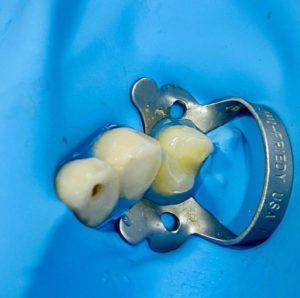 Todo lo que necesitas saber sobre Endodoncias 14