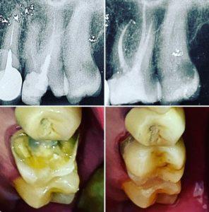 Todo lo que necesitas saber sobre Endodoncias 1