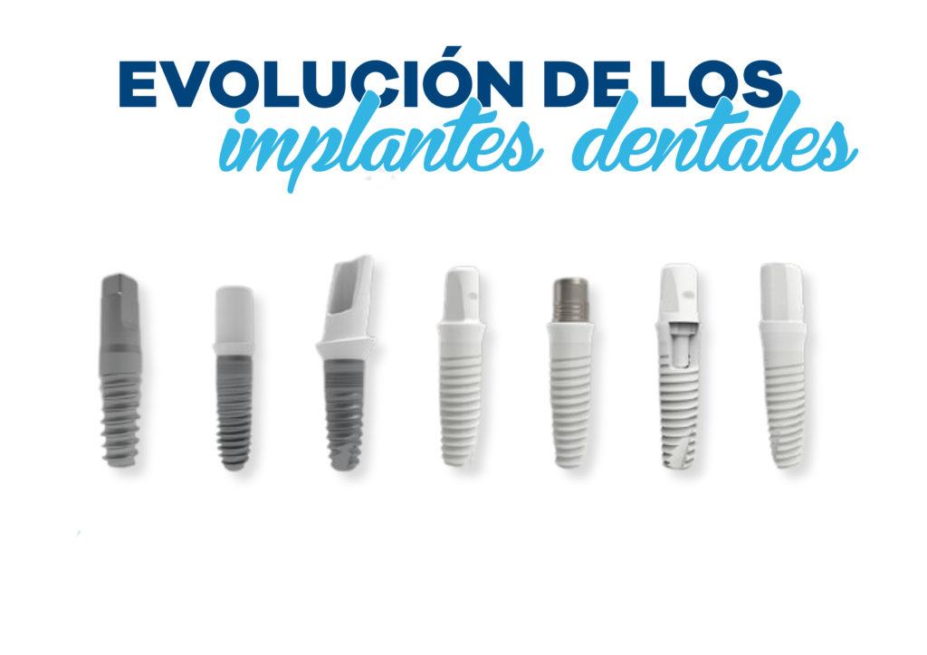 Implantología Dental 1
