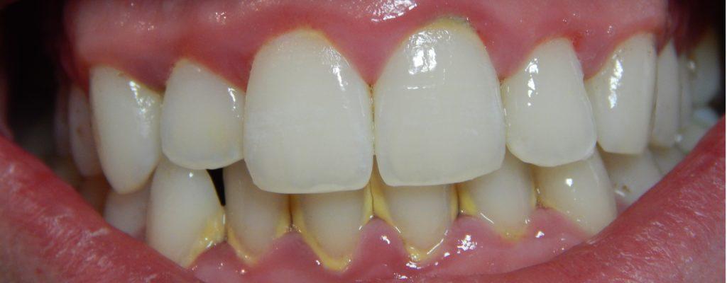Tratamiento con láser para la enfermedad periodontal 1