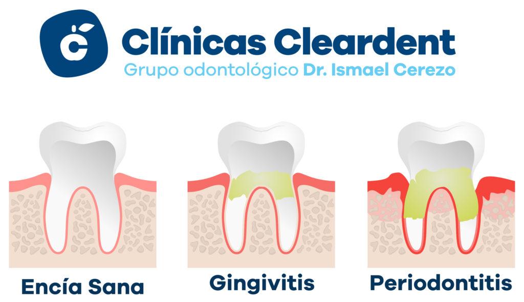 Tratamiento con láser para la enfermedad periodontal 2