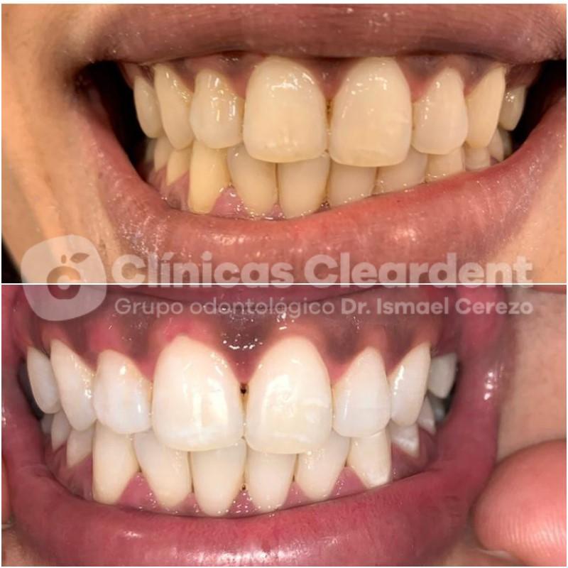Estética Dental 8