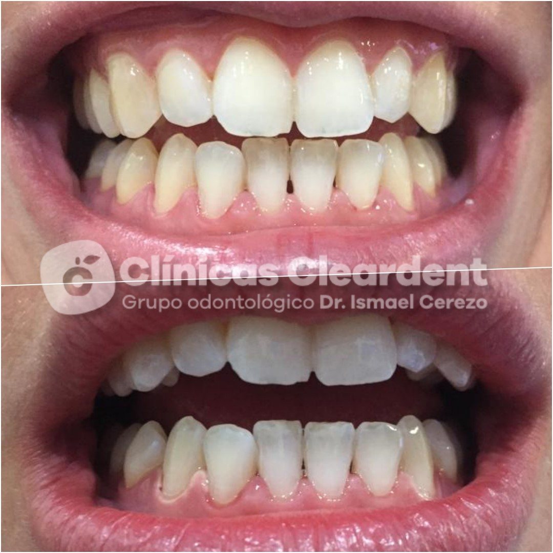 Estética Dental 9