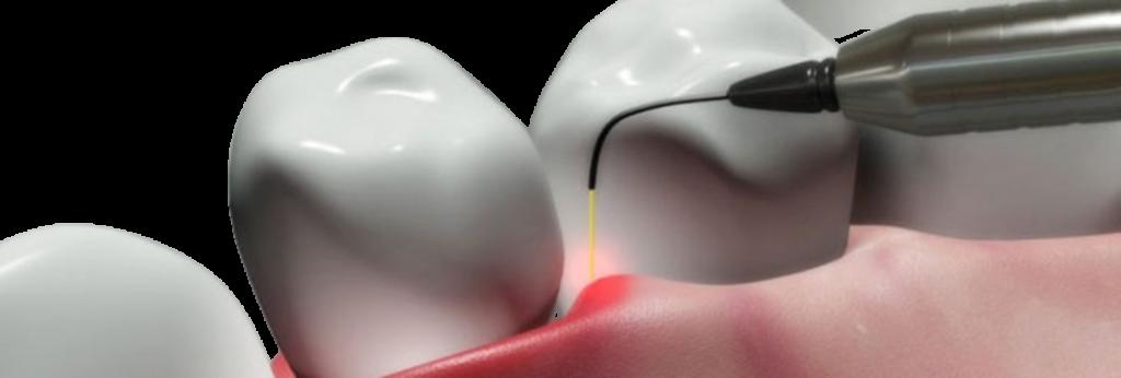 Tratamiento con láser para la enfermedad periodontal 11