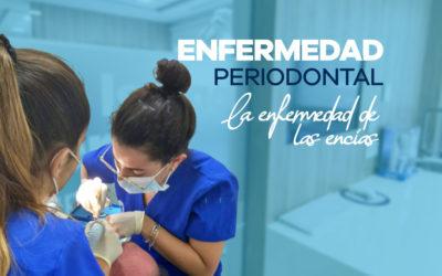 Tratamiento con láser para la enfermedad periodontal