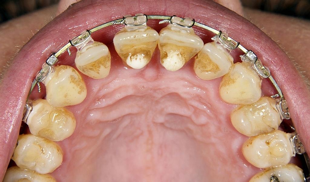 Dentadura por dentro de unos dientes con Brackets metálicos. Los dientes están llenos de sarro y su color es amarillento y marron.