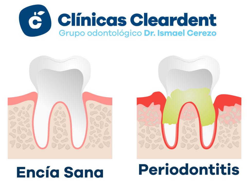 Imagen que representa la periodontitis. Encía separada del diente, rojiza, diente manchado de sarro, color amarillento.