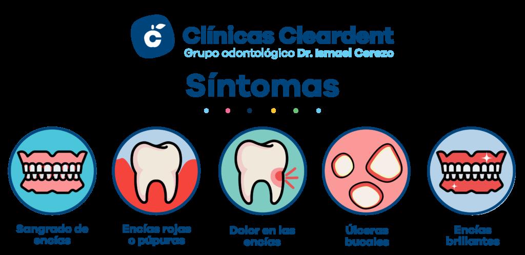 Infografia con imágenes de los sintomas principales de la gingivitis