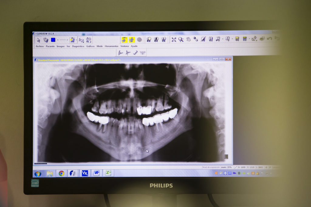 Implantes Dentales y Poco hueso 9