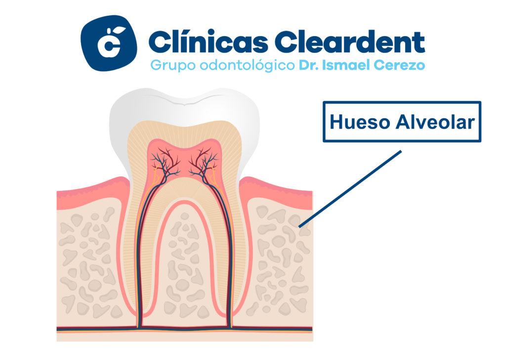 Implantes Dentales y Poco hueso 1