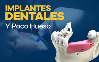 Implantes Dentales y Poco hueso