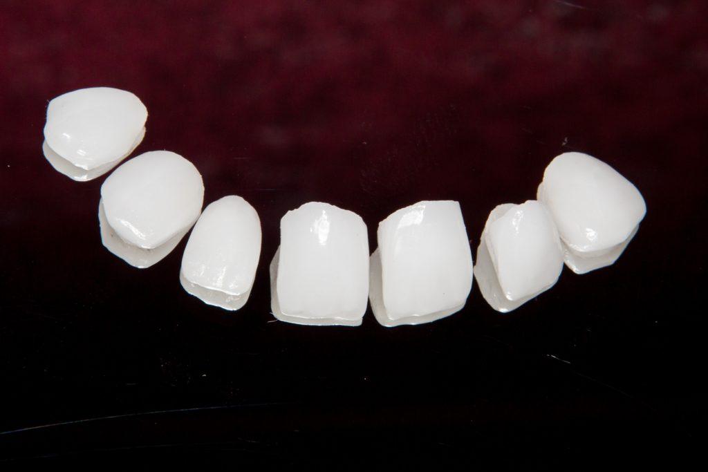 Sonrisa Perfecta ¿Carillas dentales o blanqueamiento? 7