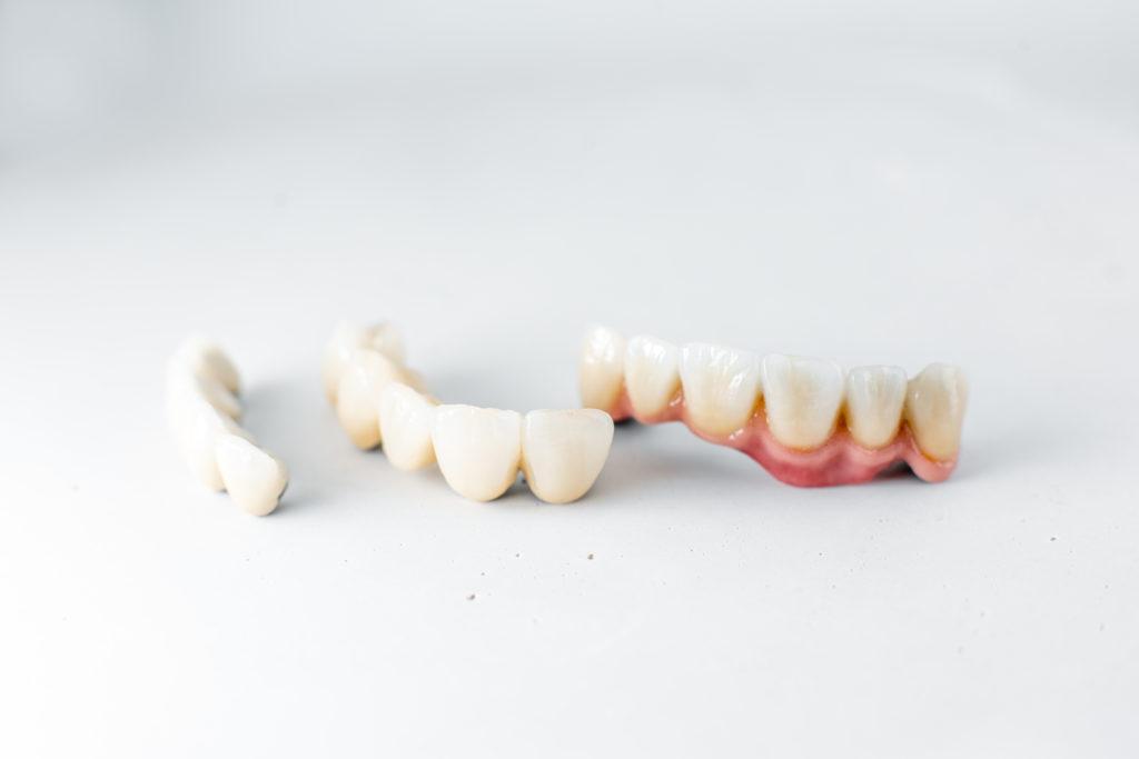 Sonrisa Perfecta ¿Carillas dentales o blanqueamiento? 1