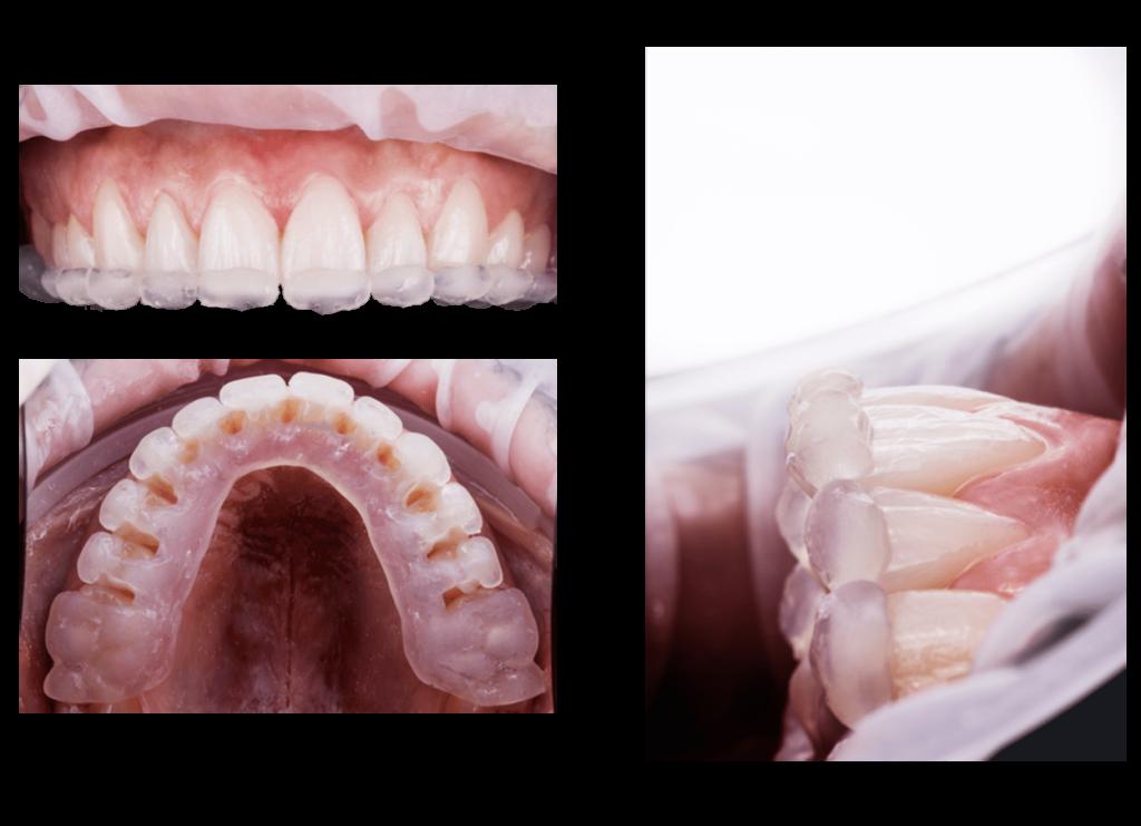 Sonrisa Perfecta ¿Carillas dentales o blanqueamiento? 9