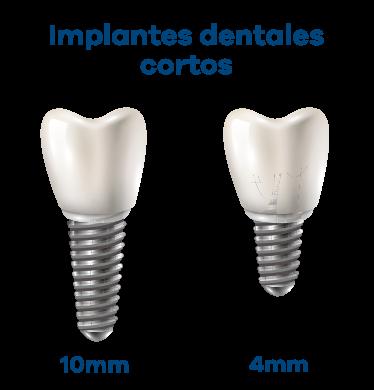 Implantes Dentales y Poco hueso 12