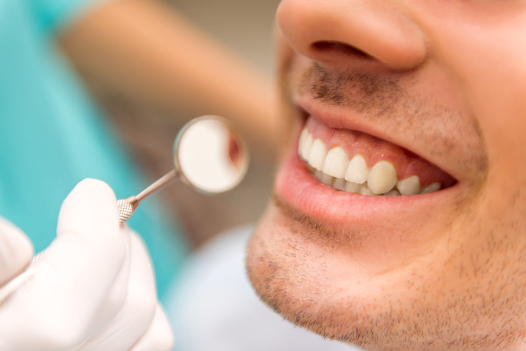 Sonrisa Perfecta ¿Carillas dentales o blanqueamiento? 8