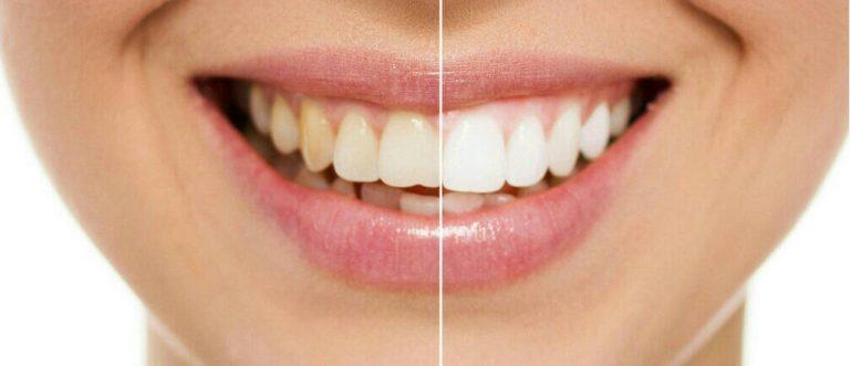 Sonrisa Perfecta ¿Carillas dentales o blanqueamiento? 5