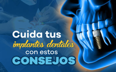 Implantes Dentales: cuidados y postoperatorio