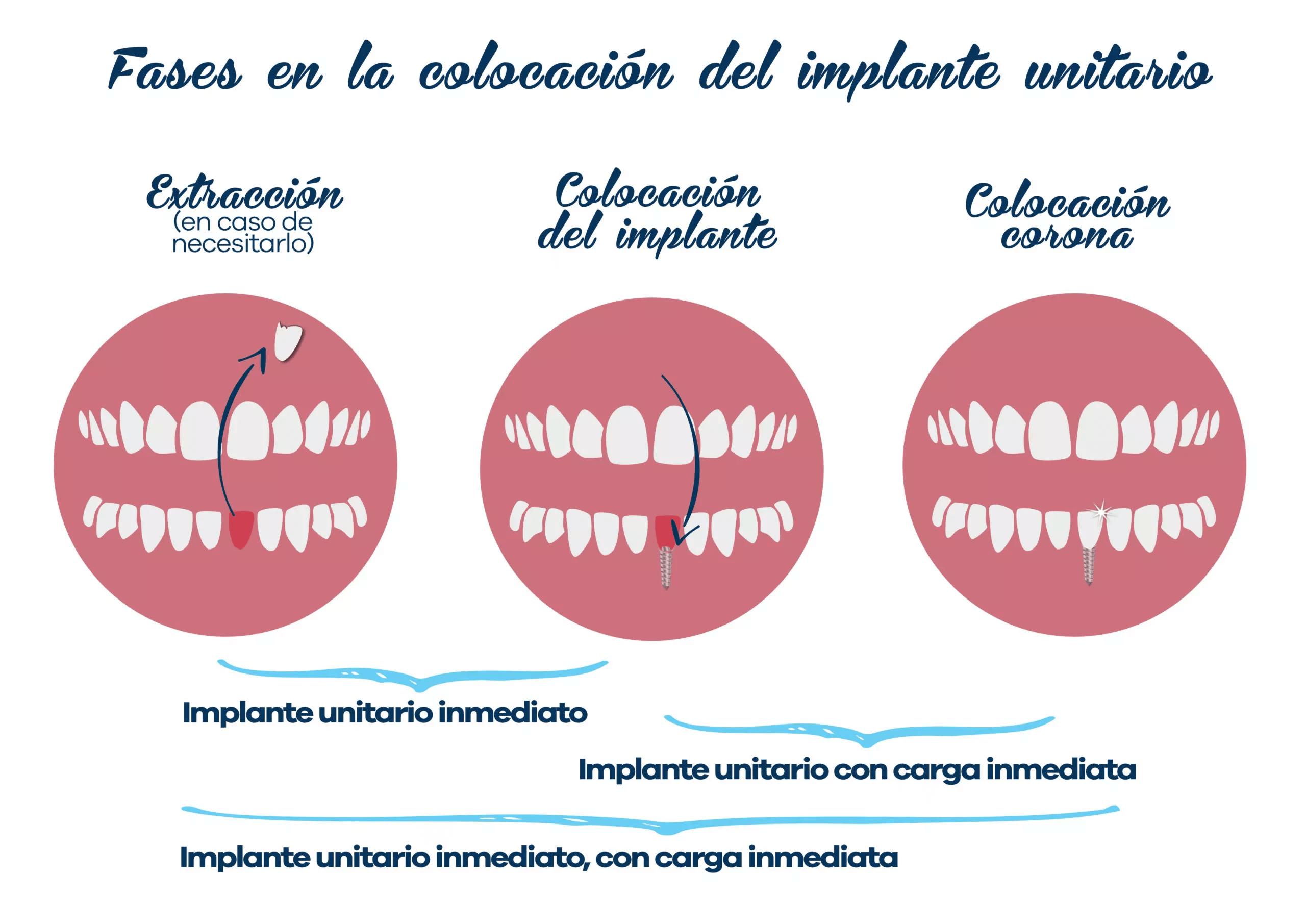 Implantología 2