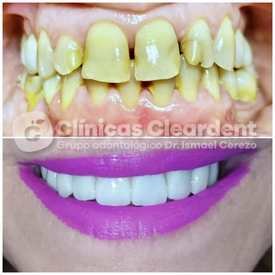 Estética Dental 6