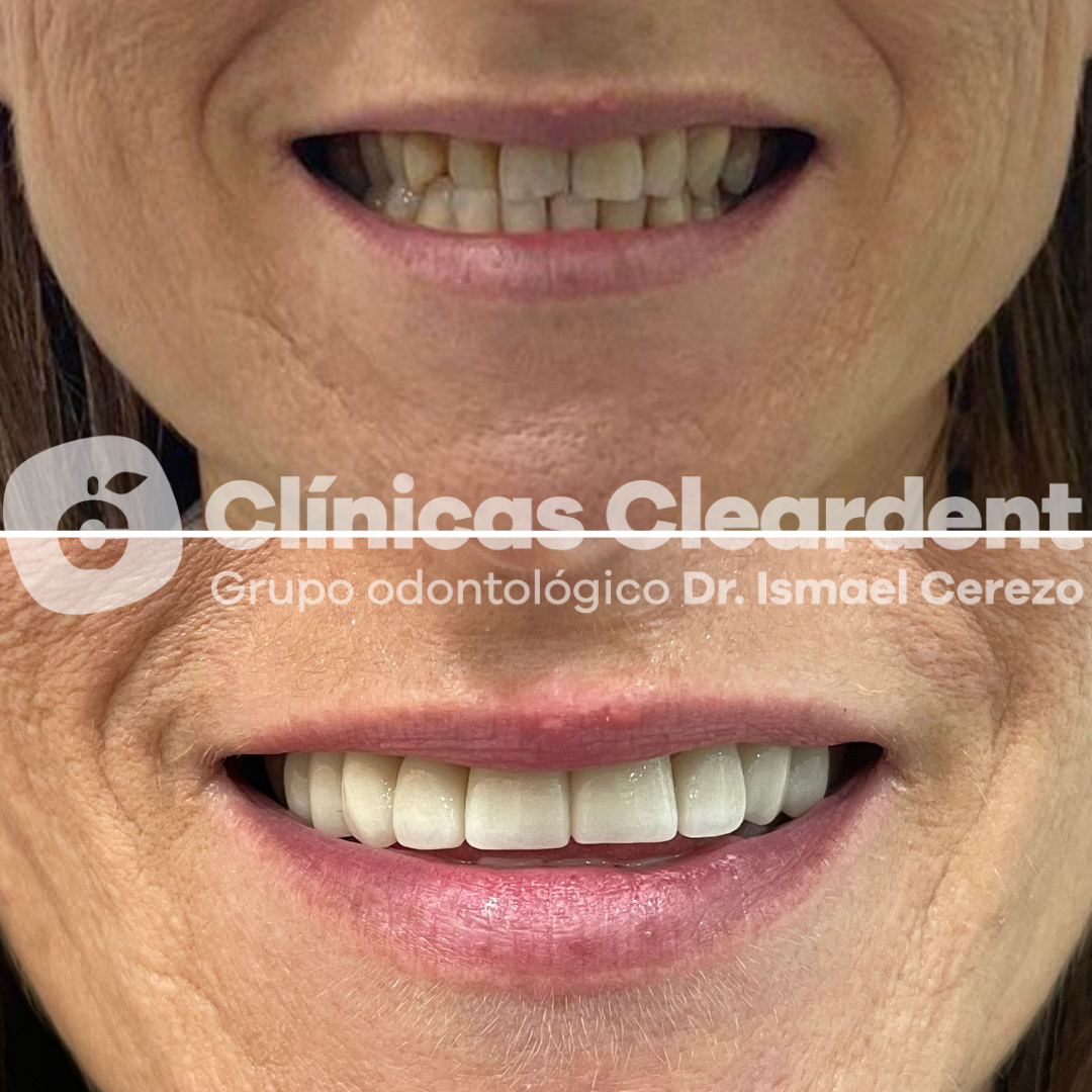 Estética Dental 5